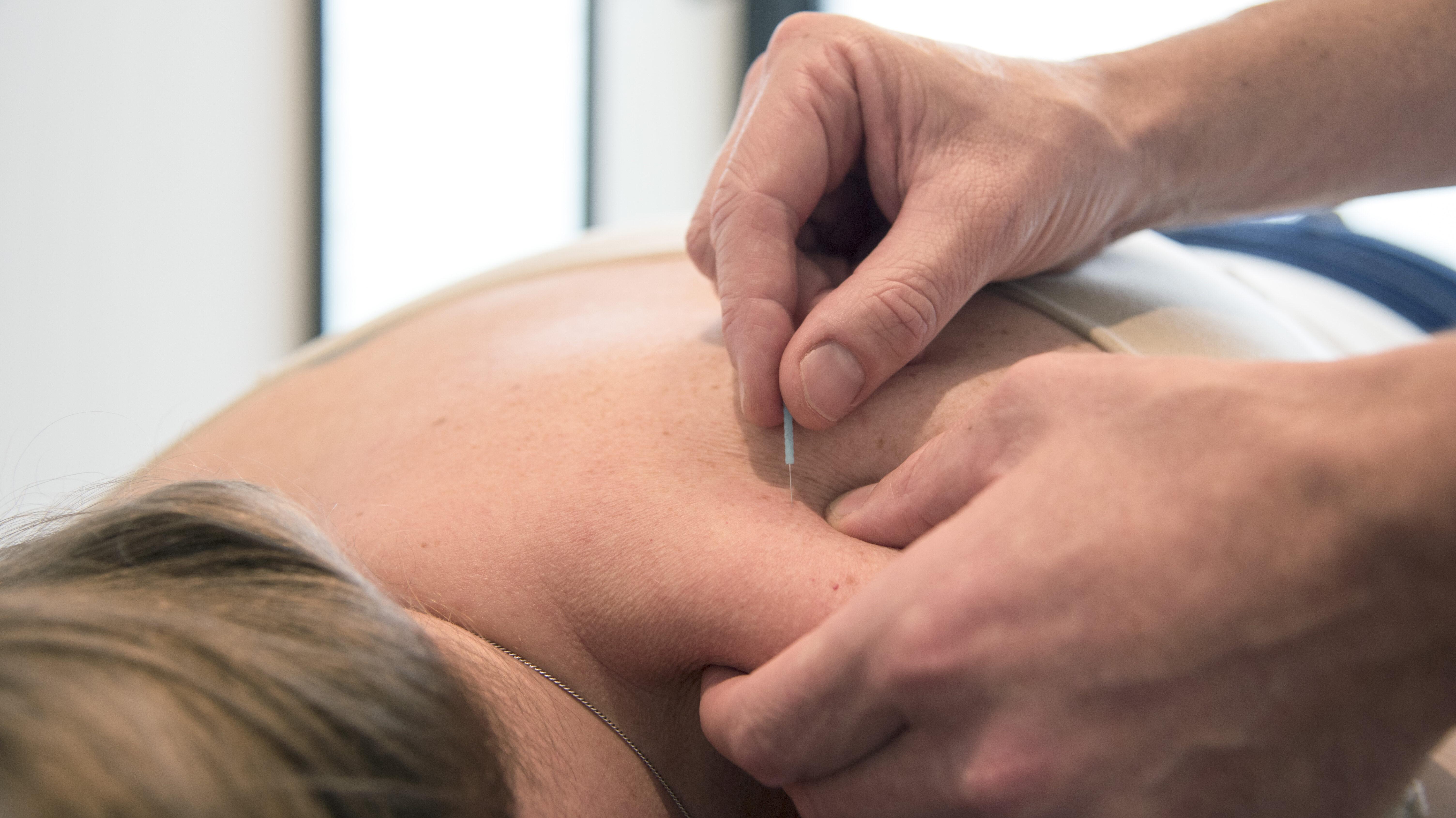 Acupunctuur - FysioHellevoet
